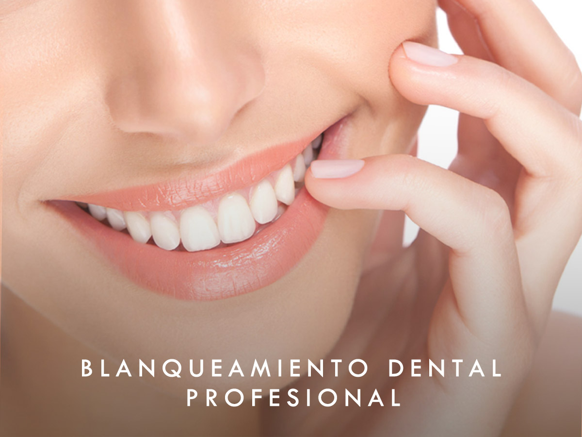Blanqueamiento dental profesional
