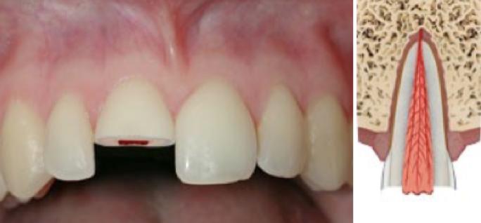 fractura-de-corona-dental-con-afectacion-pulpar