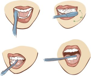 Como cepillarse los dientes - Clínica Pfaff dentista en Barcelona