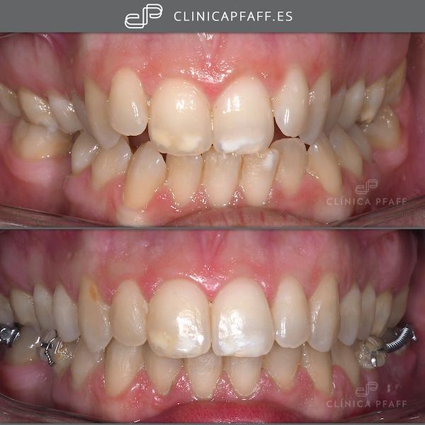 antes-y-despues-tratamiento-ortodoncia-brackets-barcelona-Pfaff-sant-gervasi-02
