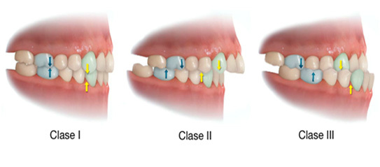 tipos-maloclusion-dental-clase-1-2-3