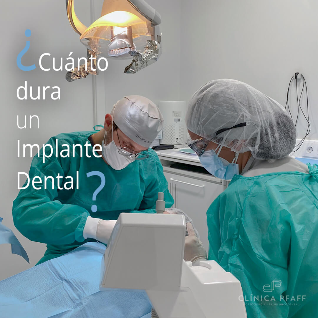 cuanto-dura-un-implante-dental-barcelona