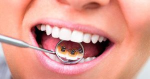 ortodoncia-lingual-barcelona