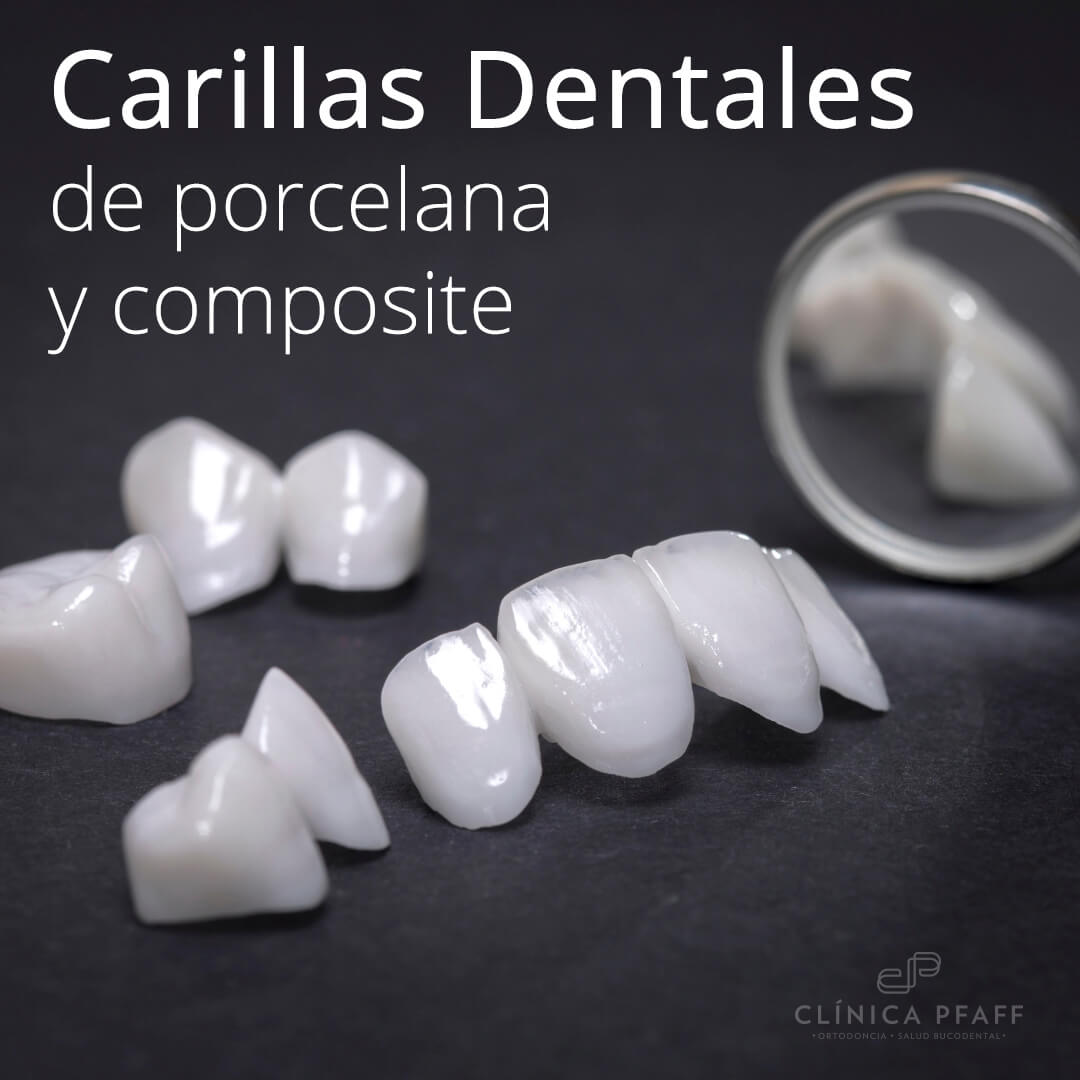 carillas-porcelana-barcelona